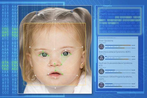 Face2Gene диагностирует редкие генетические аномалии