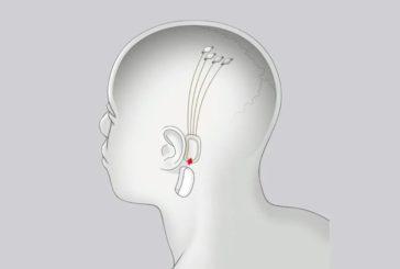 Neuralink свяжет мозг с компьютером