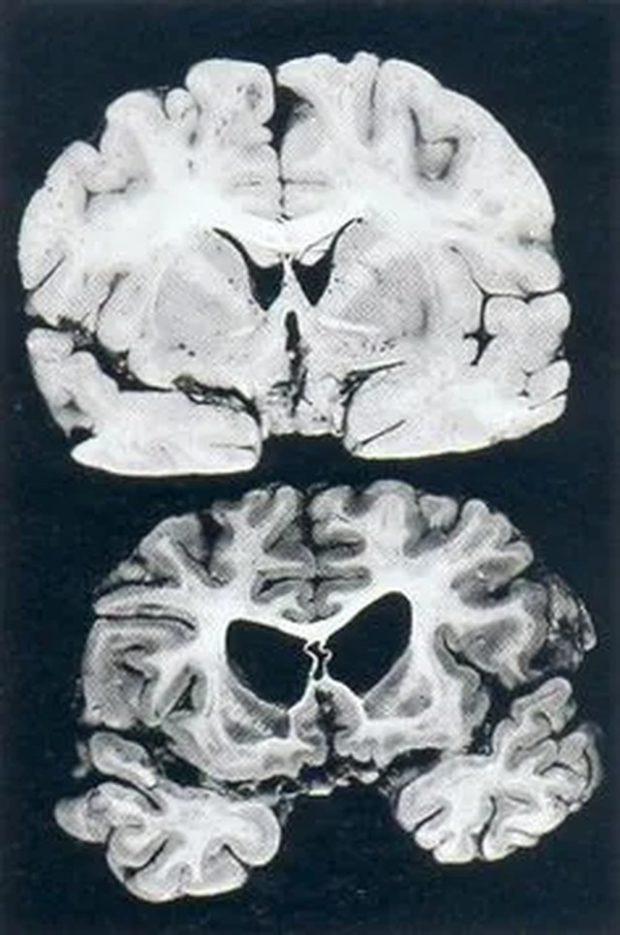 Срез мозга здорового человека (вверху) и мозга человека с болезнью Гентингтона (внизу)
