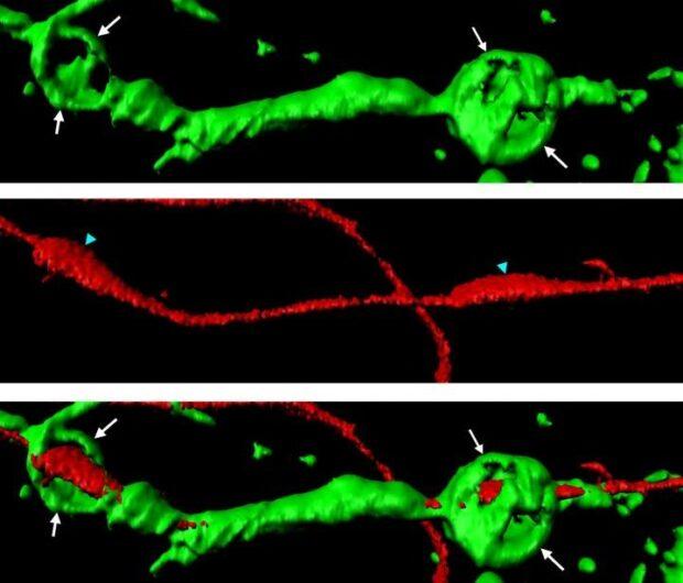 Восстановление нервов после перелома позвоночника