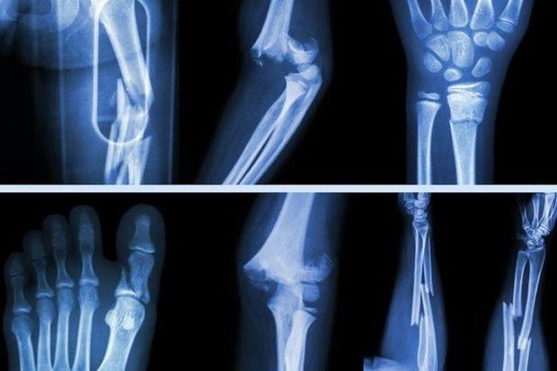3D-печать индивидуальных протезов костей