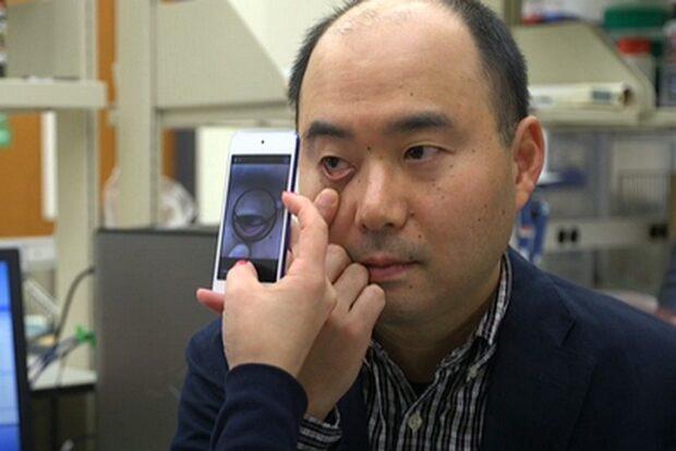 Медики научились диагностировать низкий гемоглобин и анемию при помощи смартфона