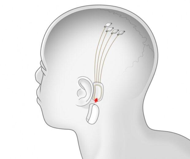 Neuralink для чипирования людей