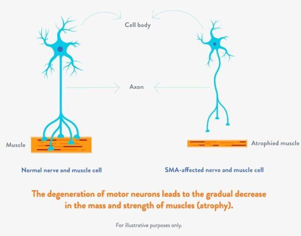 Спинальная мышечная атрофия (СМА) — генетическое нервно-мышечное заболевание