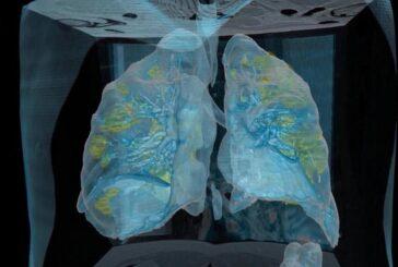 Пациенту с COVID-19 провели трансплантацию легких