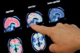 Нейроплатформа, определят когнитивное состояние